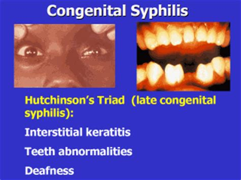 Hutchinson's triad (blunted upper incisors, interstitial