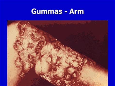 Gummas may be quite extensive and coalescent